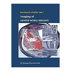 Imaging of Carotid Artery Stenosis - Buch
