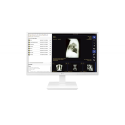 LG Monitor 24CK560N-3A Thin Client All-in-One 60,5 cm (23.8