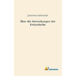Über die Verrenkungen der Kniescheibe. Johannes Hohenthal  - Buch