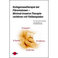 Kollagenasetherapie bei Fibromatosen - Minimal-invasive Therapieverfahren mit Fallbeispielen: eBook von Karsten Knobloch