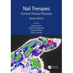 Nail Therapies: eBook von