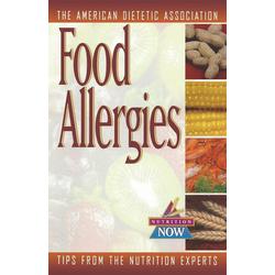 Food Allergies: eBook von