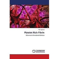 Platelet Rich Fibrin. Parv Agarwal  - Buch