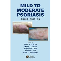 Mild to Moderate Psoriasis: eBook von