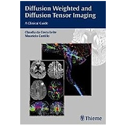 Diffusion Weighted and Diffusion Tensor Imaging - Buch
