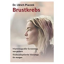 Brustkrebs. Ulrich Placzek  - Buch