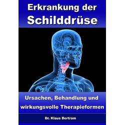 Erkrankung der Schilddrüse - Ursachen Behandlung und wirkungsvolle Therapieformen: eBook von Klaus Bertram