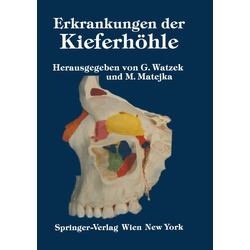 Erkrankungen der Kieferhöhle als Buch von