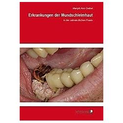Erkrankungen der Mundschleimhaut. Margrit-Ann Geibel  - Buch