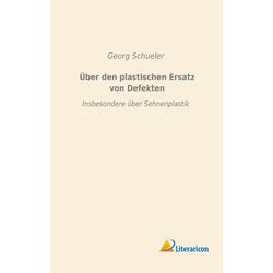 Über den plastischen Ersatz von Defekten als Buch von Georg Schueler