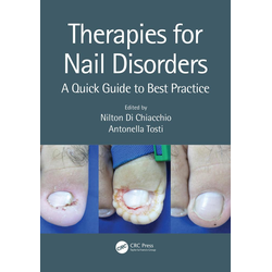 Therapies for Nail Disorders: eBook von