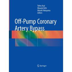 Off-Pump Coronary Artery Bypass als Buch von